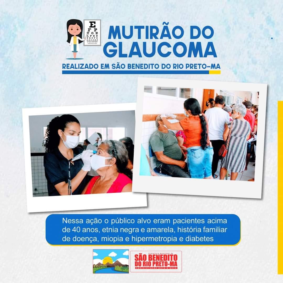 Mutirão do glaucoma.